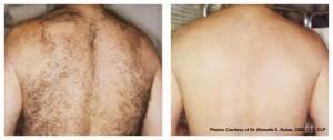 GentleLASE Hair Reduction