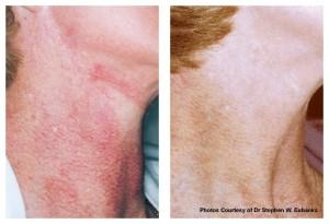 V-Beam Laser Treatment of Poikiloderma Of Civatte
