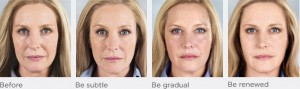 Sculptra Before and After Photos