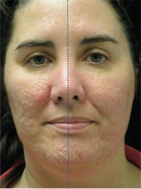 Co2 facial laser cost arizona