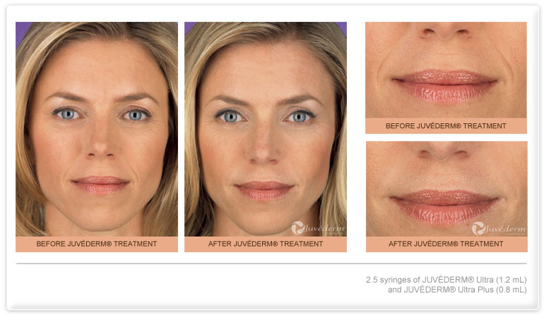 Skin Filler injections in New Jersey | SOMA Skin & Laser