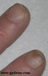 Psoriatic nail changes