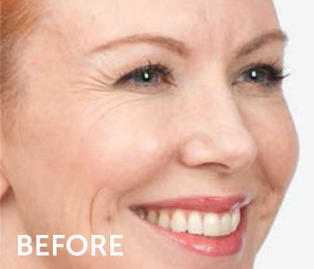 Cosmetic Botox Injections in New Jersey | SOMA Skin & Laser