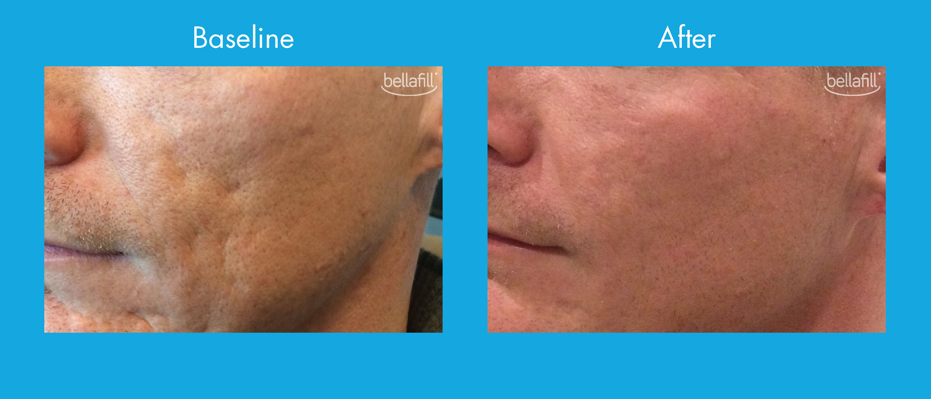 Bellafill Treatment For Acne Scarring In New Jersey Soma Skin Laser