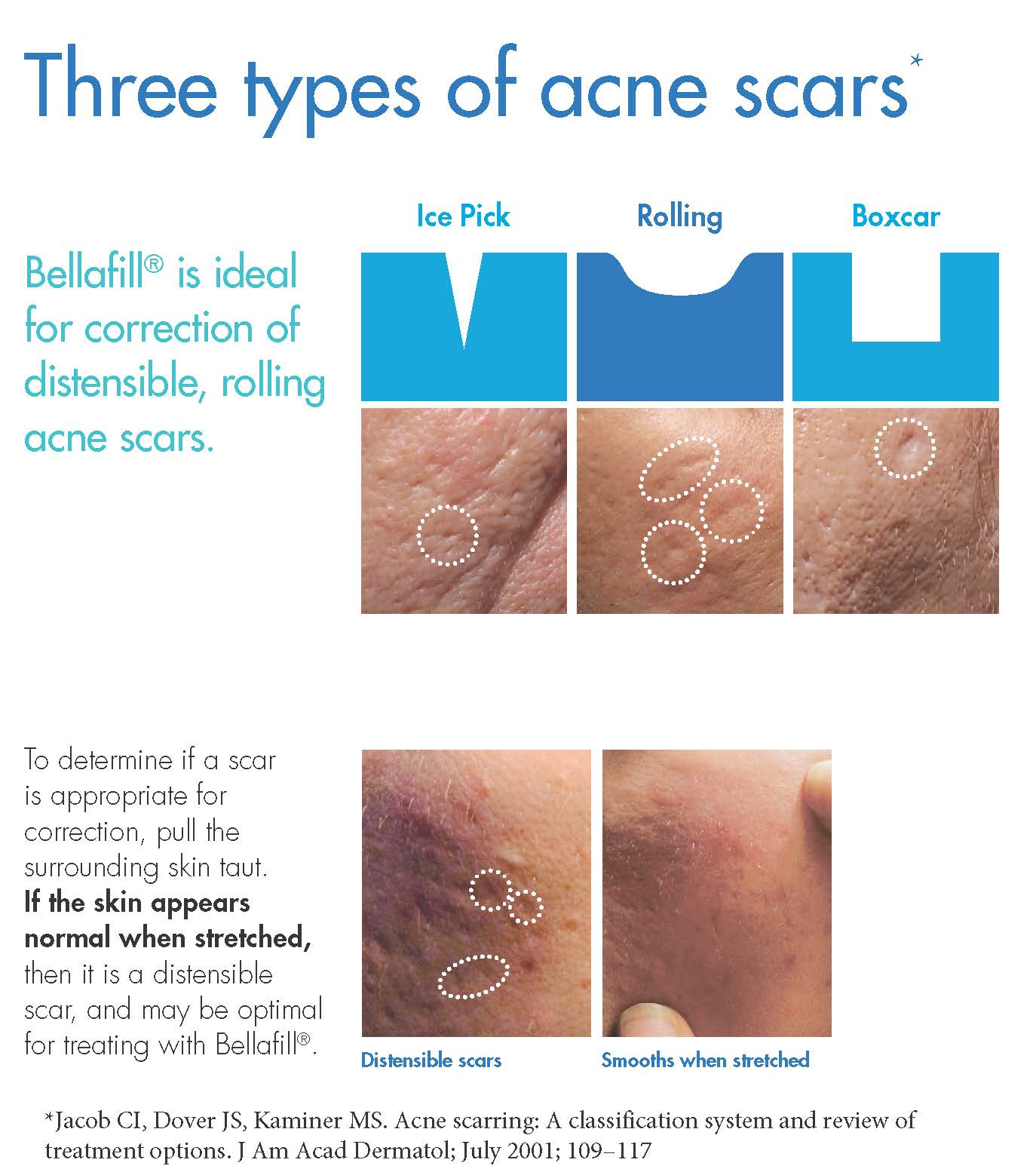 Best Acne Scarring NJ | Reflections Center  |Acne Scar Types