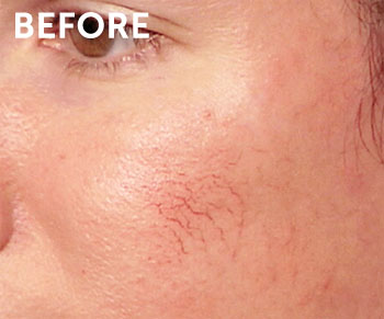 Laser Treatment For Vascular Lesions And Rosacea In New Jersey