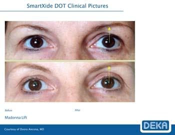 Madonna Eye Lift in New Jersey   SOMA Skin & Laser