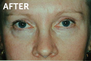 Treatment of Pigmented Lesions in New Jersey | SOMA Skin & Laser