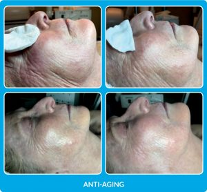 ProCell Before and After Anti-aging