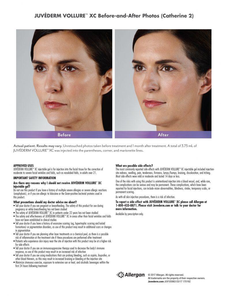 Juvederm Vollure Facial Filler   SOMA Skin & Laser