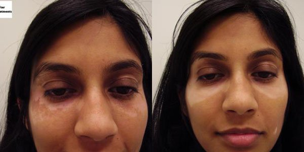 Pharos Excimer Laser For Vitiligo In New Jersey Soma Skin Laser