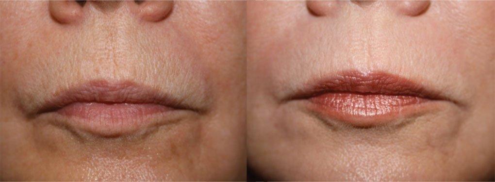 Fractional CO2 Laser Treatment in Millburn NJ | SOMA Skin