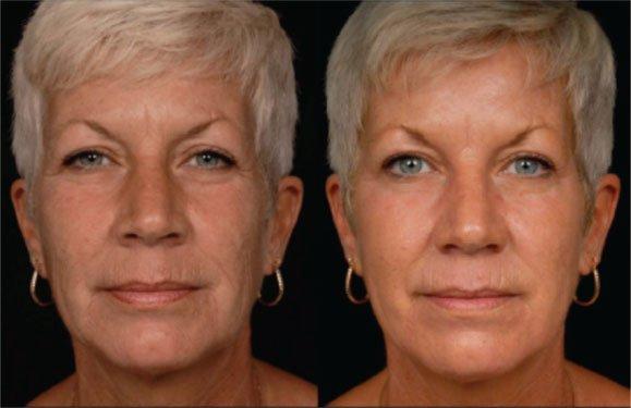 Fractional Co2 Laser Treatment In Millburn Nj Soma Skin Laser
