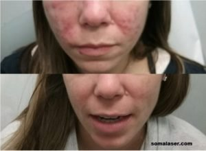 Acne Before & After 7 months of Isotretinoin