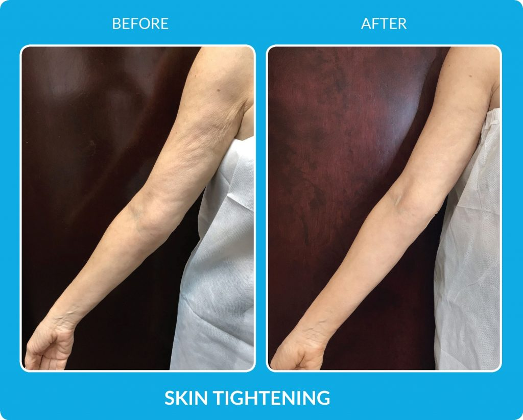 ProCell on arms Before and After