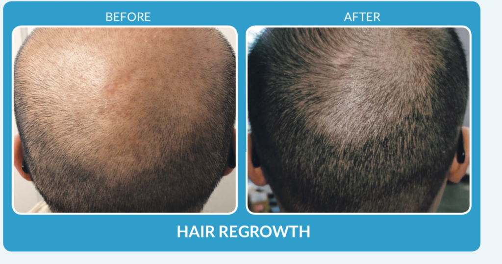 Hair Regrwoth with ProCell Before & After