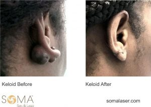 Earlobe keloid removal