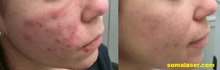 Acne before and after 8 months if isotretinoin
