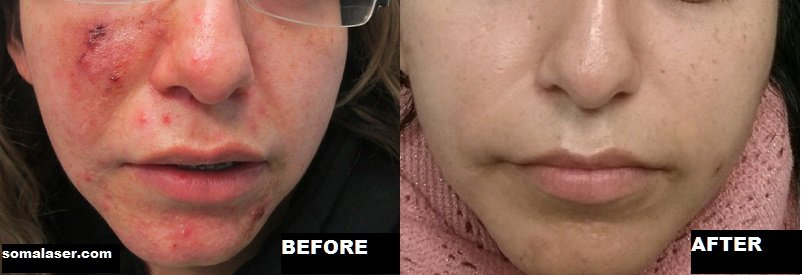 Acne Before & After Course Of Isotretinoin