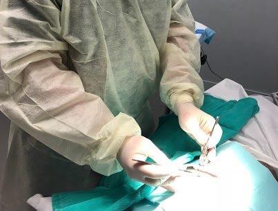 Dr. Ehrenreich removing a sebaceous cyst