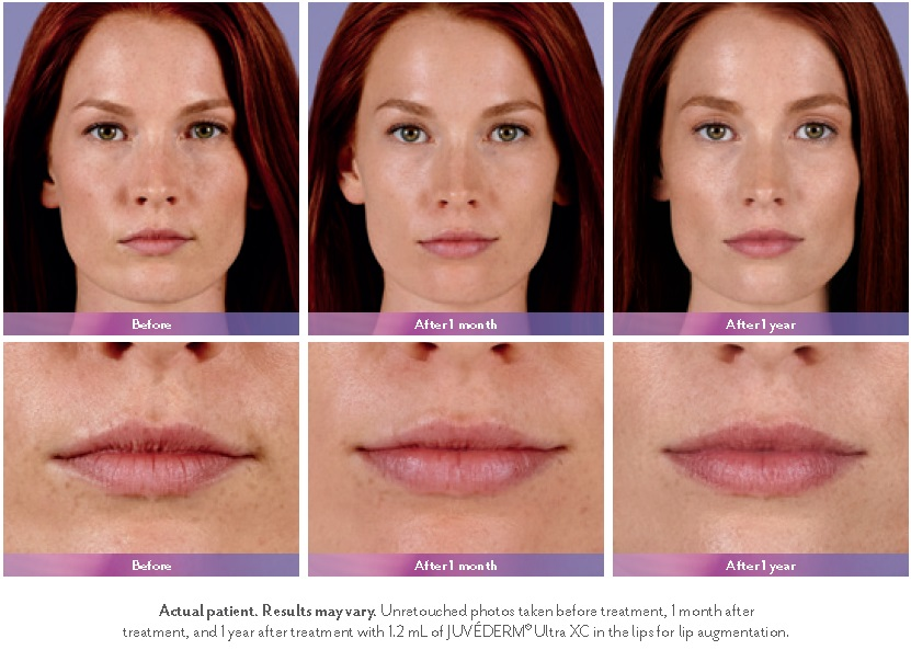 Lip Injections Millburn, NJ - Somalaser
