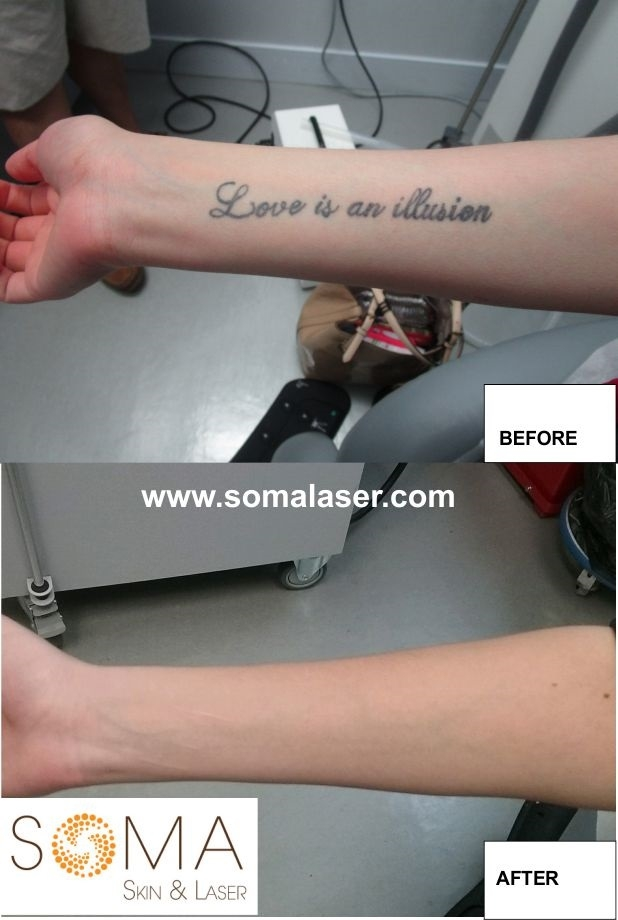 Laser Tattoo Removal in New Jersey | SOMA Skin & Laser
