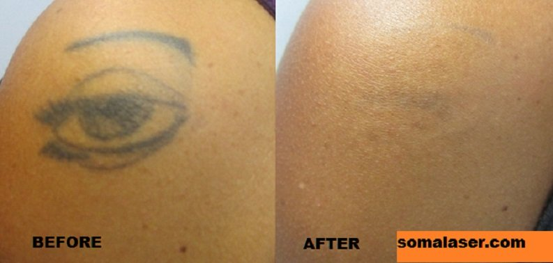 Laser Tattoo Removal Before & After