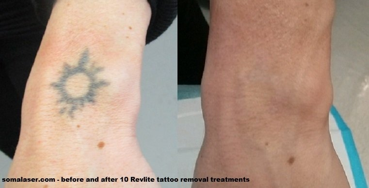 Before and after 10 Revlite laser tattoo removal sessions